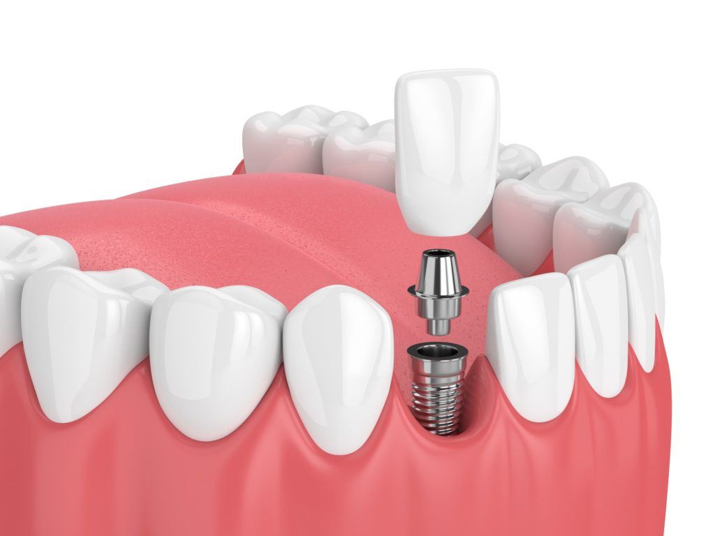 Illustration of a bottom row of teeth with a dental implant being attached