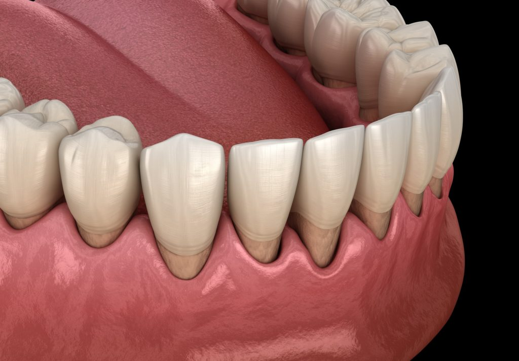 Normandy_Dentistry_Lakewood_dentistry_Preiodontal_disease-Gum_disease