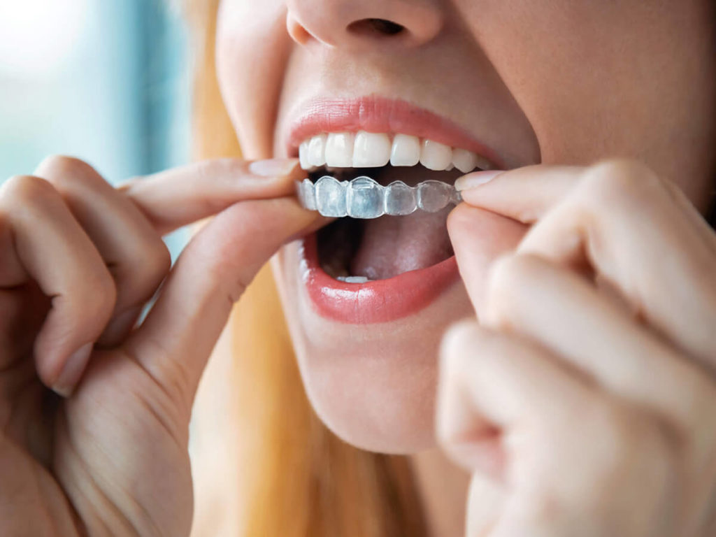 woman placing invisalign clear aligners on the top row of her teeth