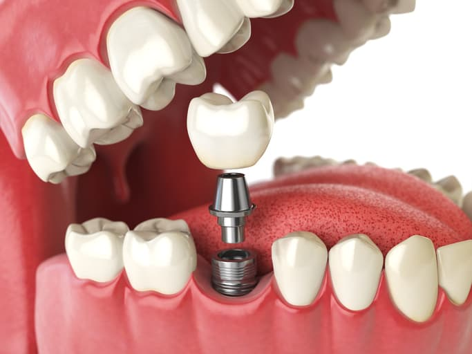 Illustration of a mouth with a dental implant being applied