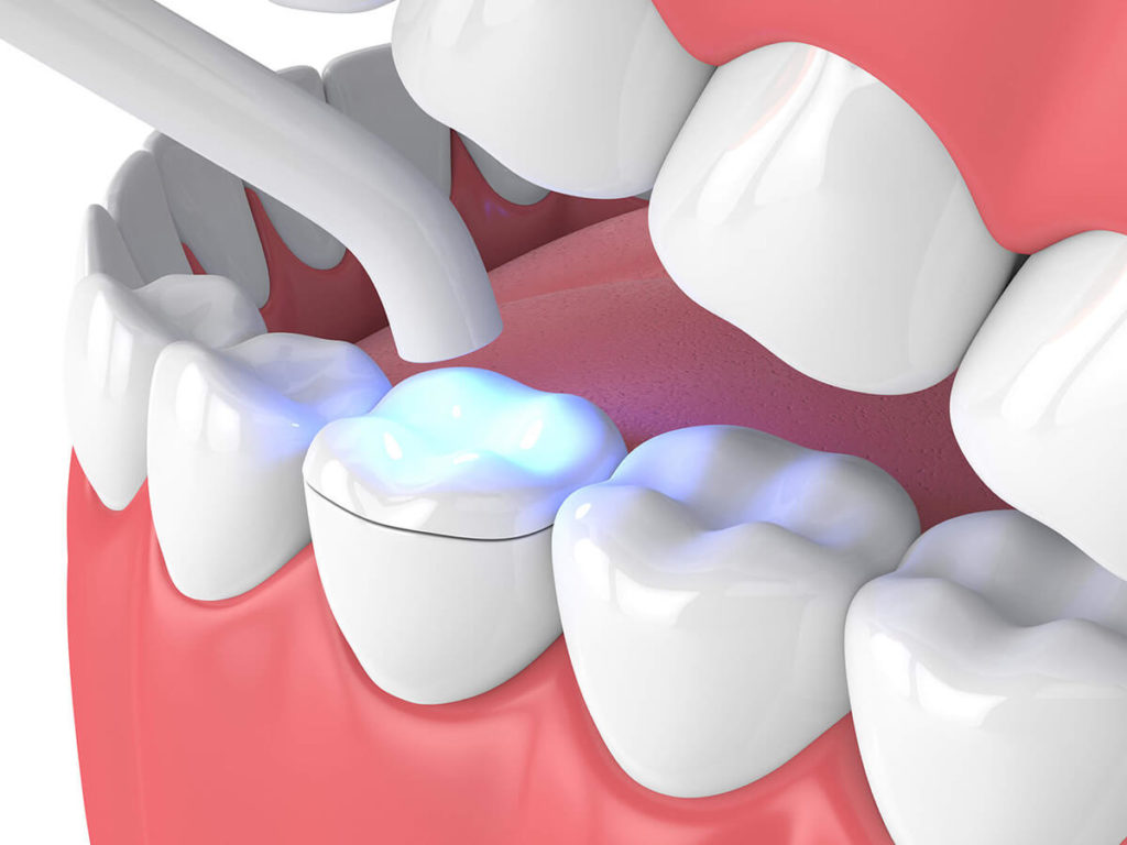 illustration of a dental inlay being applied to a tooth